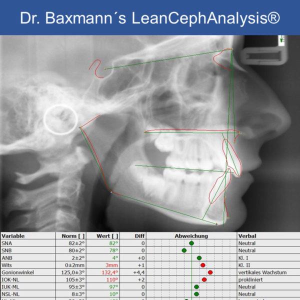 Dr Martin Baxmanns Leancephanalysis