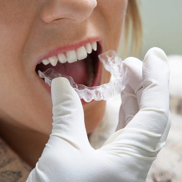 Alignertechnik In Zeiten Disruptiven Wettbewerbs Kfo Fortbildung Dr Baxmann Seminare Myortholab American Orthodontics