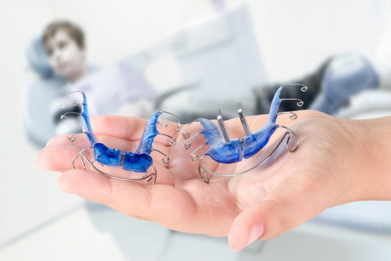 Funktionskieferorthopädie Zahnspange Kieferorthopädie Labor KempenZahntechnik myortholab.jpg
