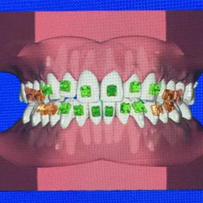 Indirektes Kleben Kfo Kieferorthopaedie Zahnpflege Myortholab Dr Baxmann