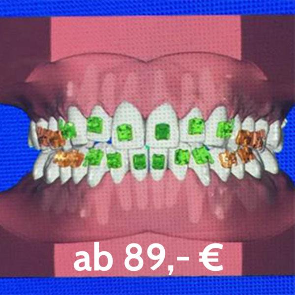 Zahnbehandlung Indirektes Kleben Multiband Kfo Praxis